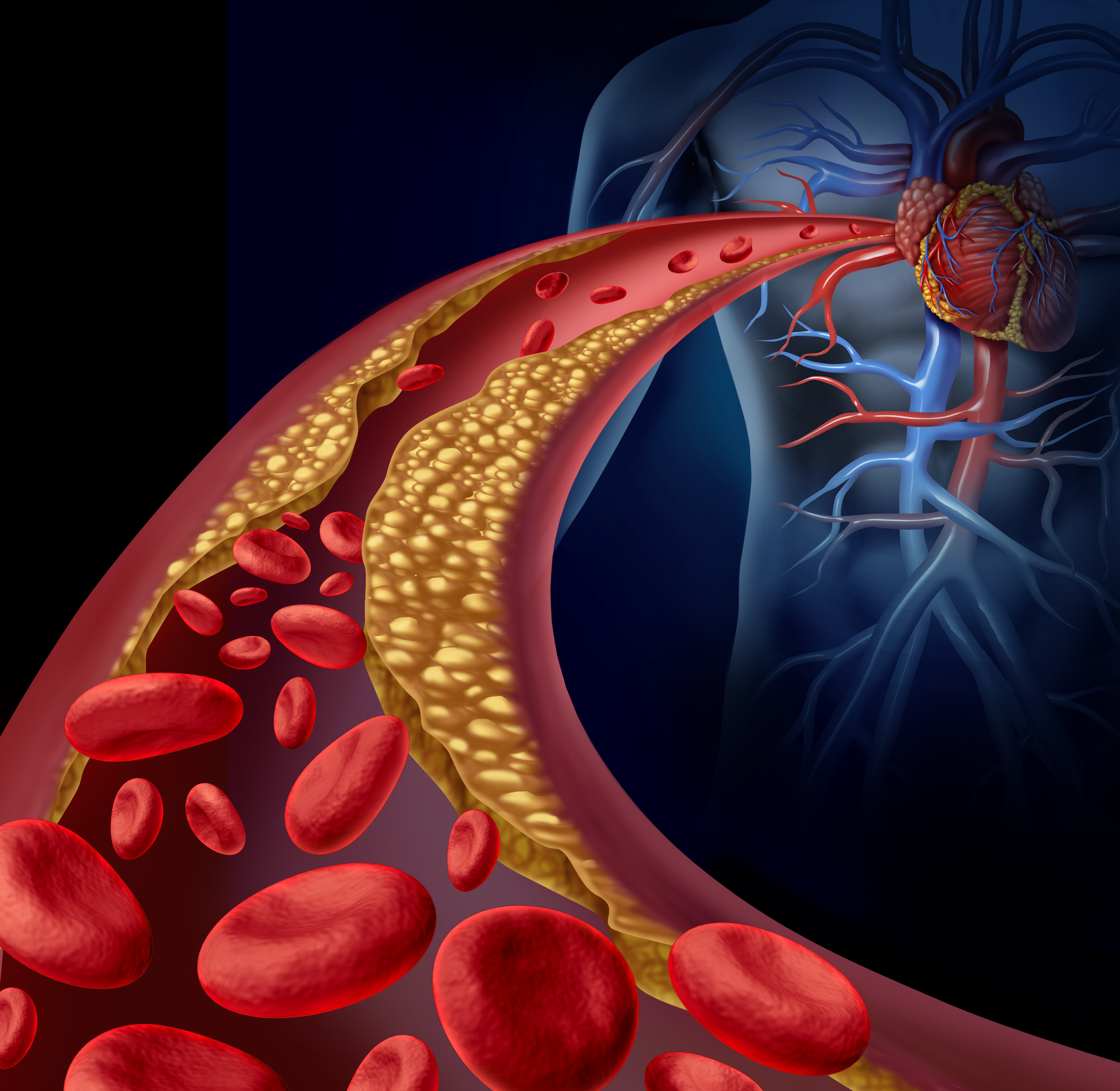 the dangers of excessive consumption of cholesterol